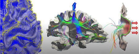 Axonal Pushing Theory of Cortical Folding